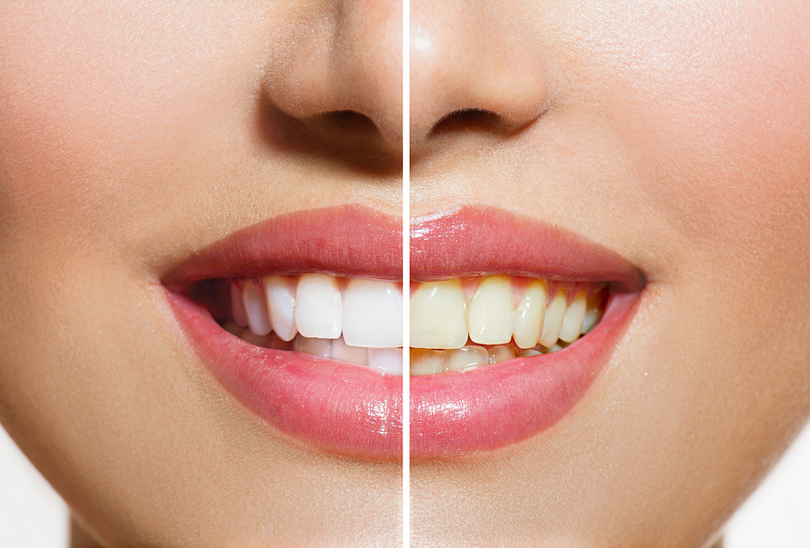 Teeth Whitening Springfield MO