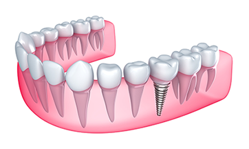 dental implants close gaps